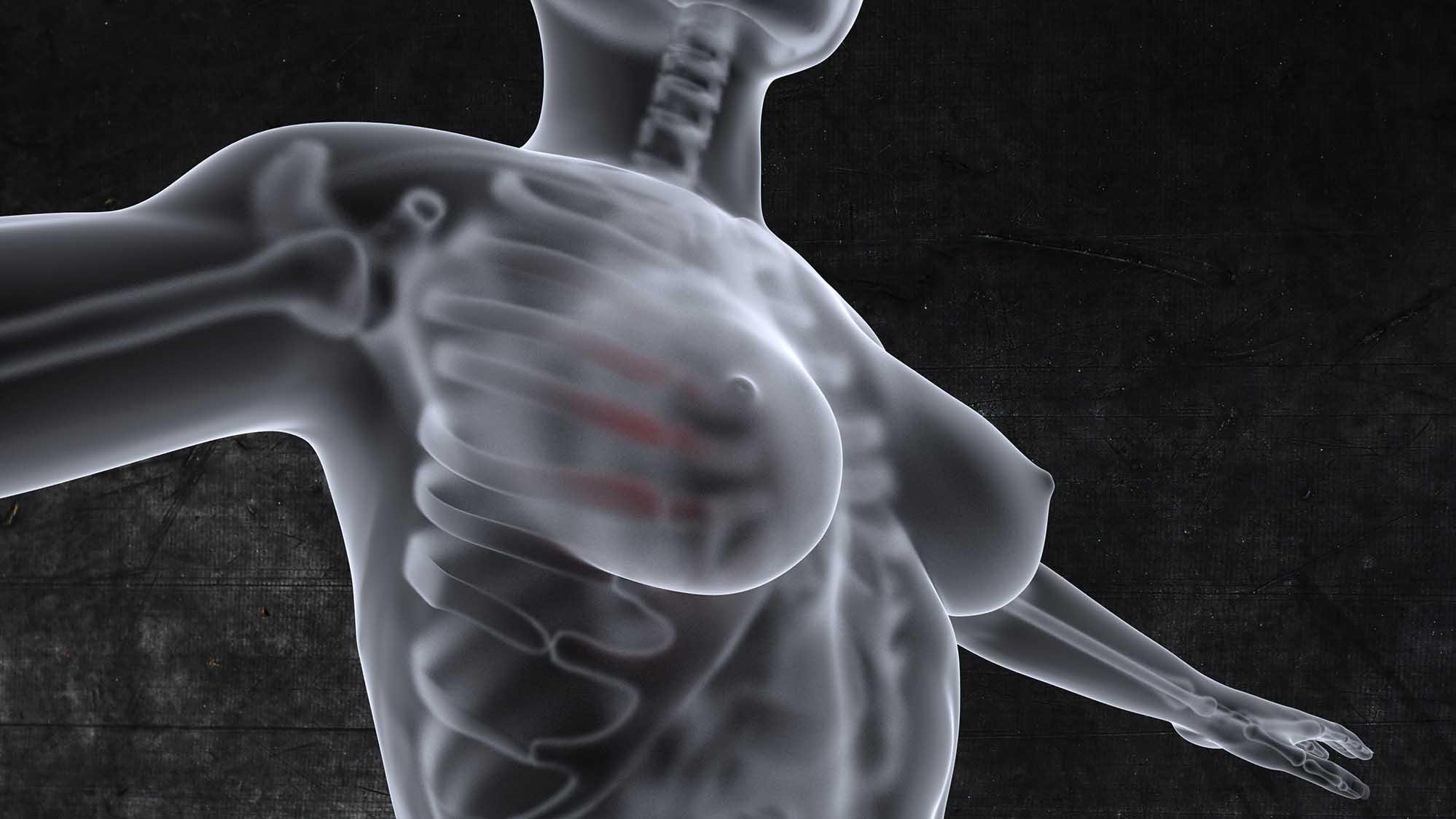 Wizualizacje 3D Ilustracja do książki, Centrum Onkologii Ziemi Lubelskiej